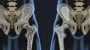 Osteoporosis – Myths and Facts